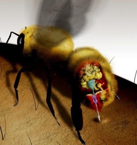 Quoi mettre sur une piqûre d'abeille